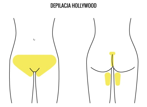 depilacja_hollywood